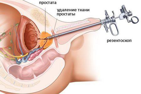 Уретроскопия у мужчин: проведение, цена и последствия