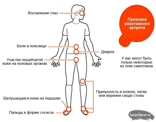 Если анализ на хламидиоз отрицательный а суставы болят причина боли в коленных суставах