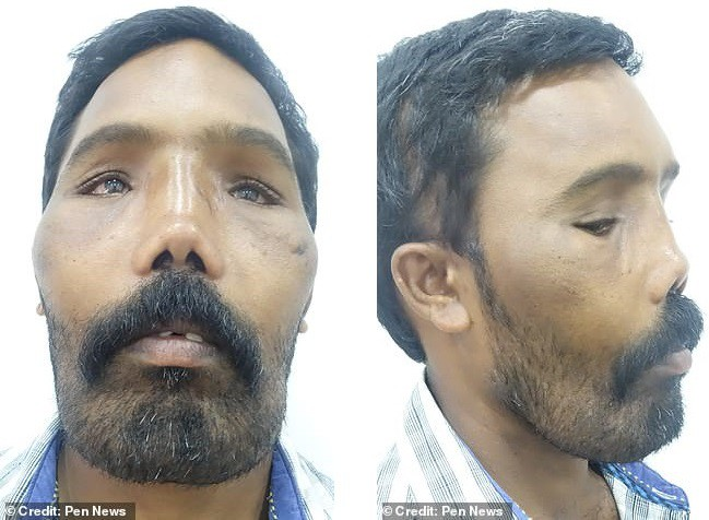 Хирурги прооперировали мужчину с крайне редкой деформацией черепа