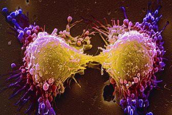 Ученые нашли способ заставить организм бороться с раком