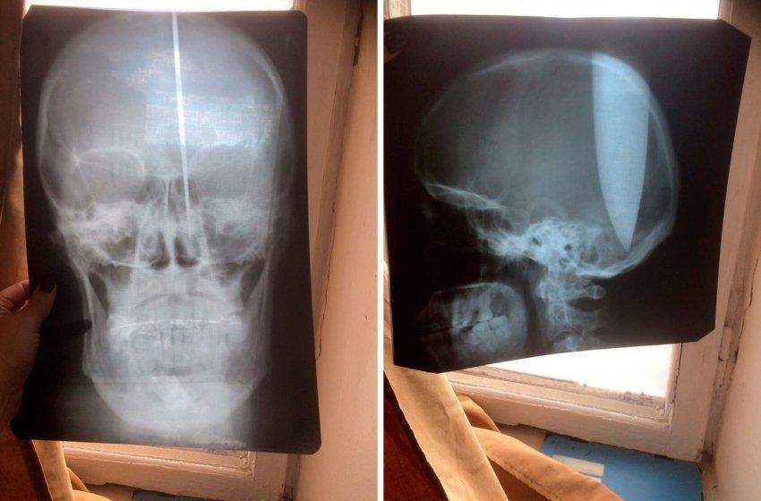 В Ростовской области мужчина пронзил себе голову огромным ножом и... практически не заметил разницы