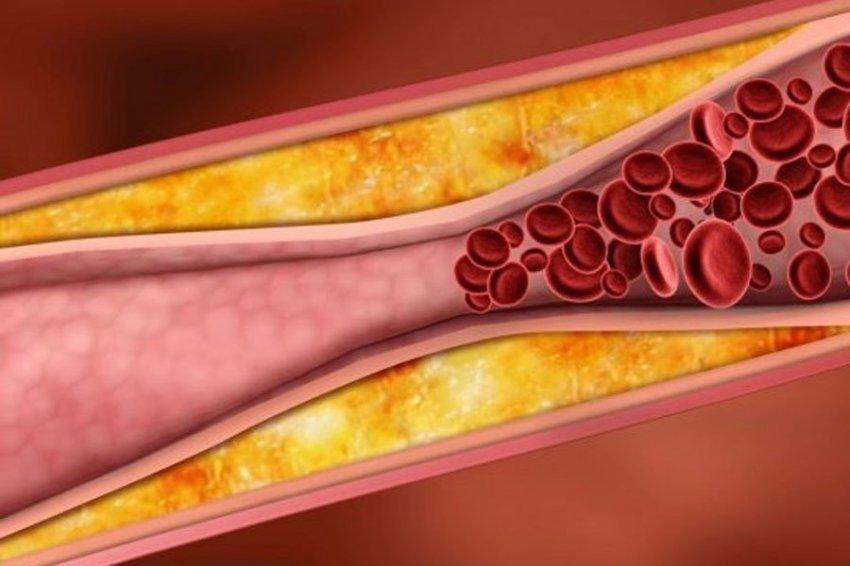 Российские биологи установили истинную причину атеросклероза