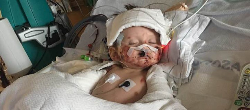 В США из-за загадочной бактериальной инфекции малышу ампутировали руки и ноги