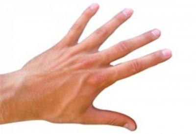 Житель Минска отрезал палец после отказа в рассрочке
