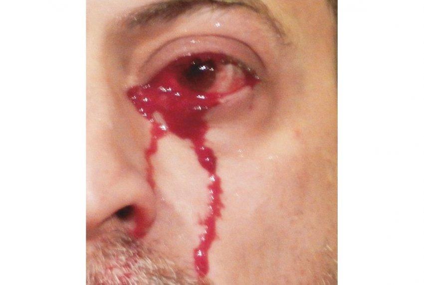 В Италии мужчина внезапно начал плакать кровью