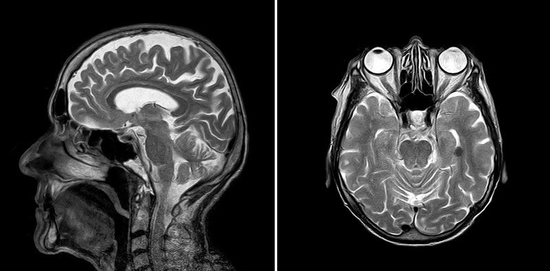 Китай хочет найти человеческую душу с помощью мощного сканера мозга