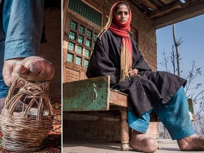 В Индии девушка никогда не носила обуви из-за паразитов
