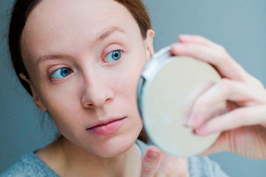 Ученые рассказали, кто из людей страдает от угревой сыпи чаще