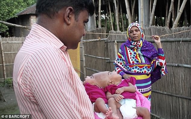 Сросшиеся головами близнецы прилетели из Бангладеш в Венгрию на операцию