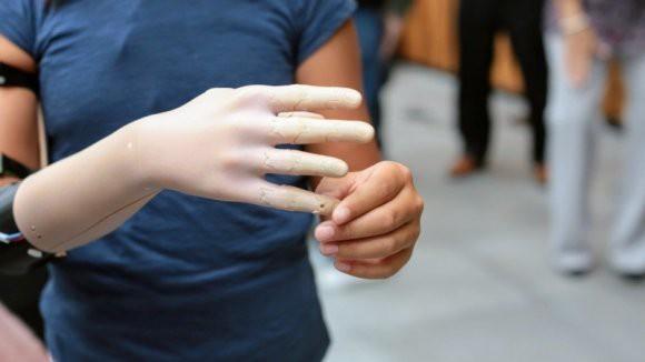Daily Mail: в Лас-Вегасе представили «невероятный» бионический протез руки