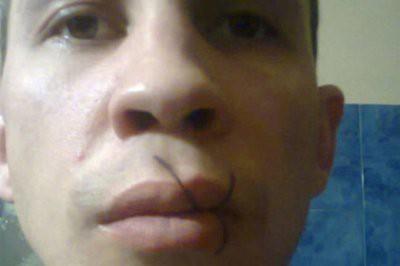В челябинской колонии осужденный зашил себе рот