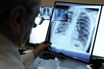 В Астане у двоих учителей выявили туберкулез