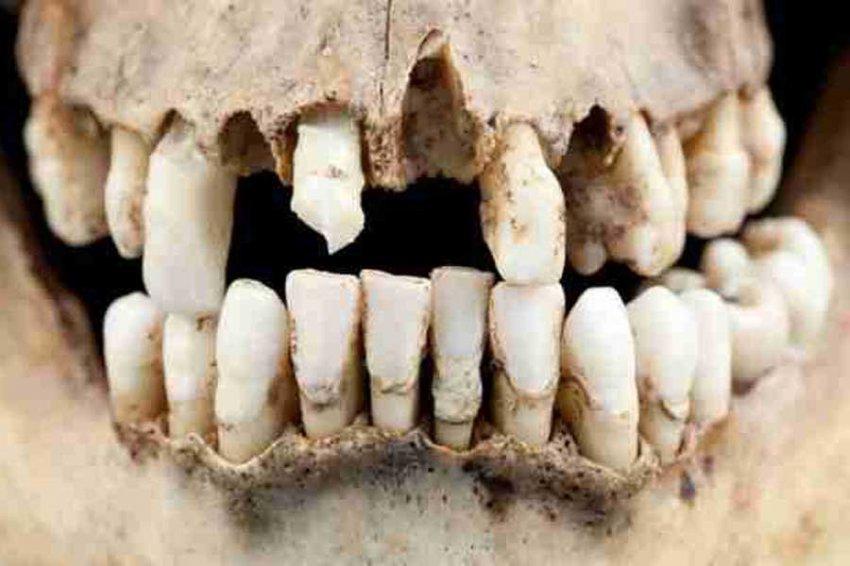 Археологи впервые нашли в Арктике зубы древнего человека