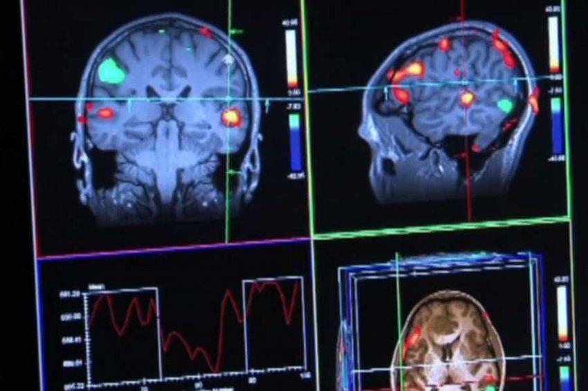 Создано лекарство, способное победить болезнь Альцгеймера