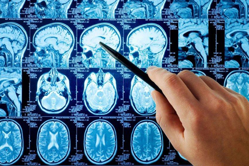 Ученые обнаружили причины курения и алкоголизма в головном мозге