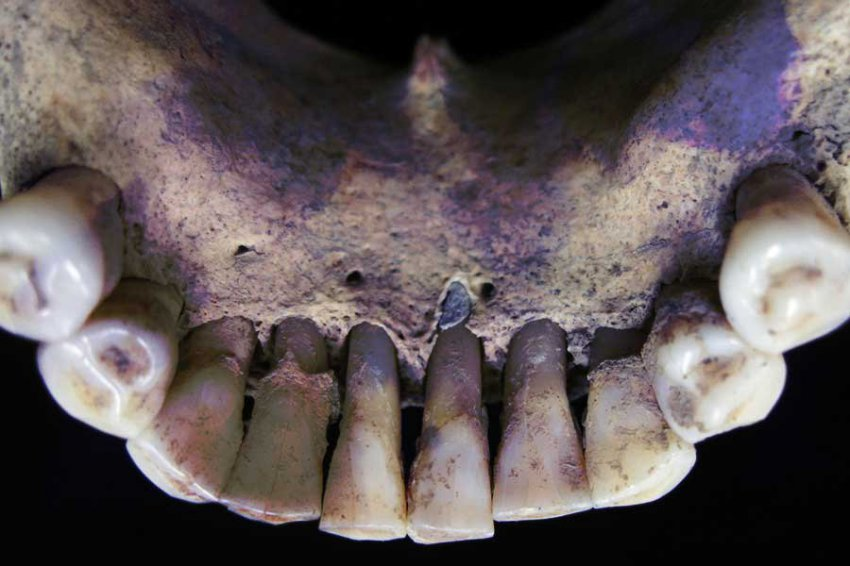 Средневековую женщину-писца опознали по ультрамарину на зубах