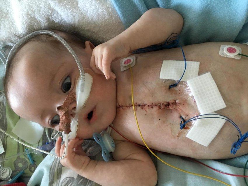 Чудо-ребенок пережил 25 сердечных приступов за день и выжил