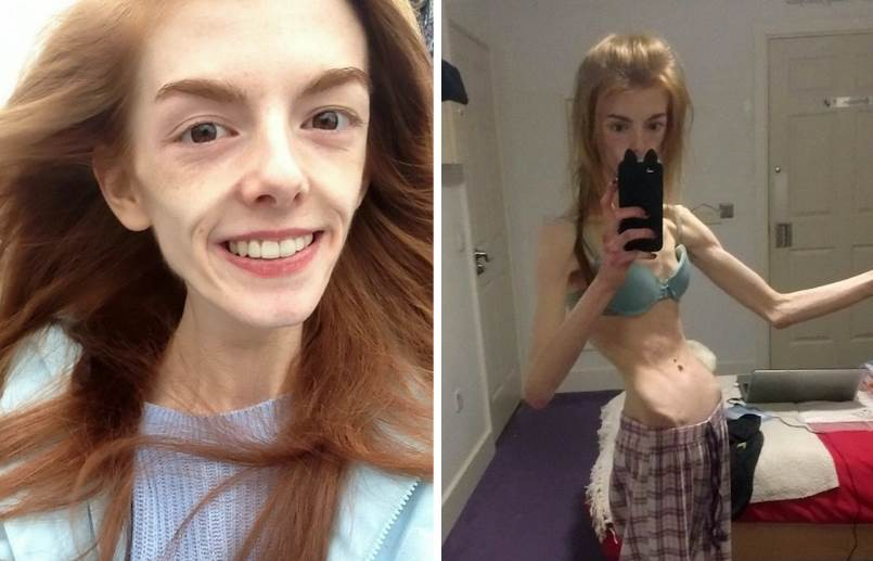 Невероятная трансформация девушки-скелета