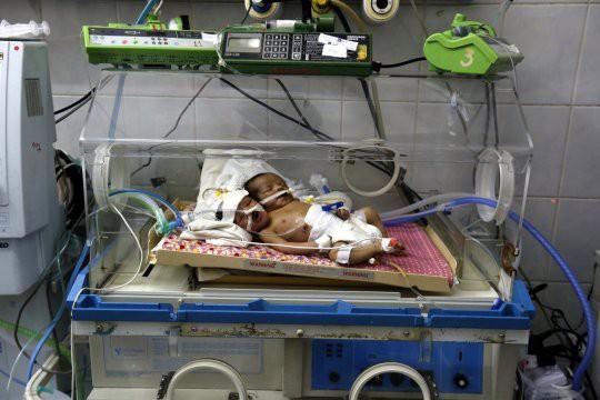 В Йемене родился двухголовый ребенок