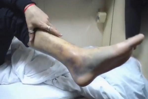 Дима Билан готовится к сложной операции