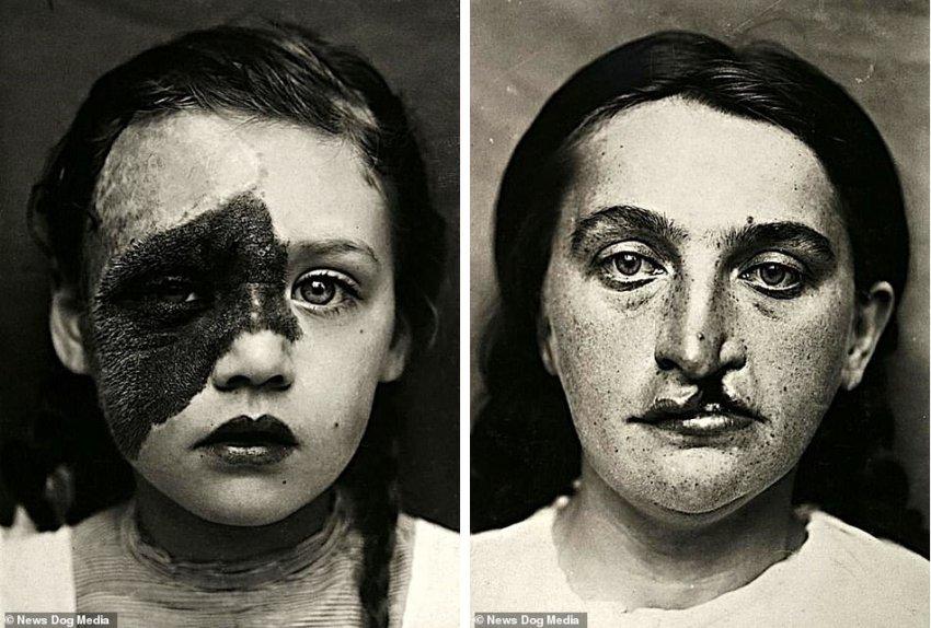 Рогатая бабушка и другие аномалии: Редкие фото вековой давности из Нидерландов