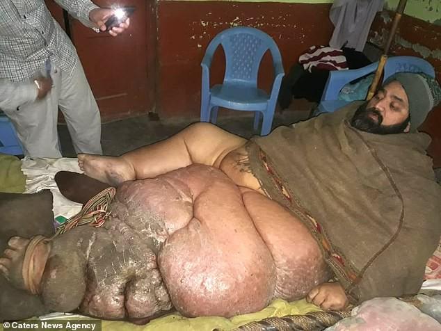 Пакистанец с громадной ногой согласен на ампутацию (Осторожно! Шокирующий контент 18+) - НЛО, инопланетяне, мистика, тайны, загадки, монстры, чупакабра, последние новости, фото и видео