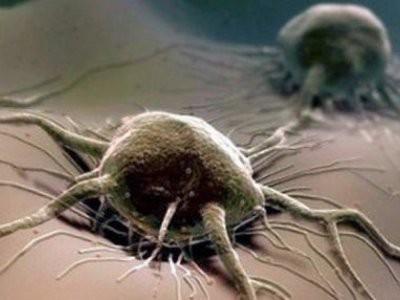 Главный онколог Андрей Каприн сообщил о росте заболеваемости раком