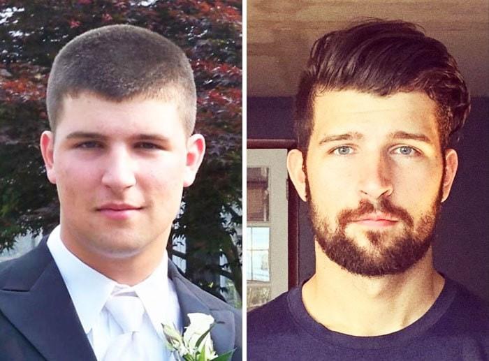 Люди поделились фотографиями своих преображений и утерли нос всем, кто дразнил их в школе
