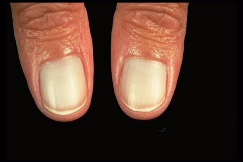 Ногти как показатель состояния здоровья человека