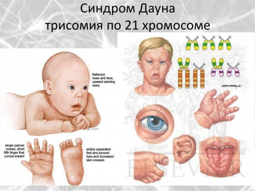 Обнаружен ген, с помощью которого изобретут лекарство от синдрома Дауна