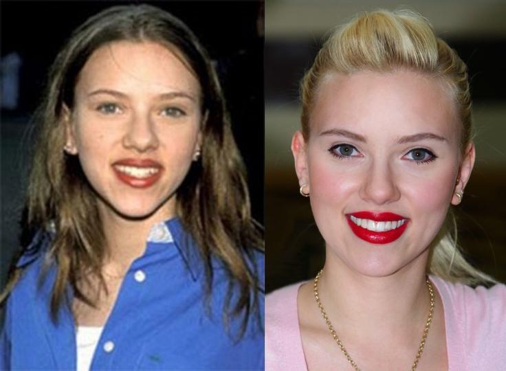 Какие голливудские звезды пользовались услугами пластических хирургов