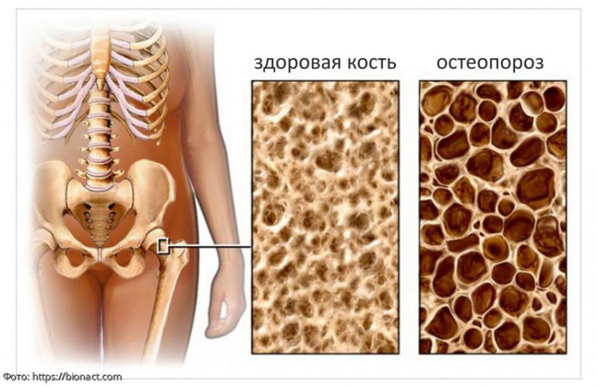 Остеопороз: риски, симптомы и лечение