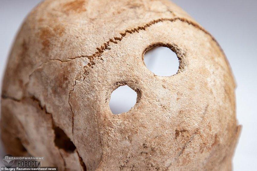 Дырки в черепе: В древней Молдавии жили искусные хирурги - Paranormal-news.ru
