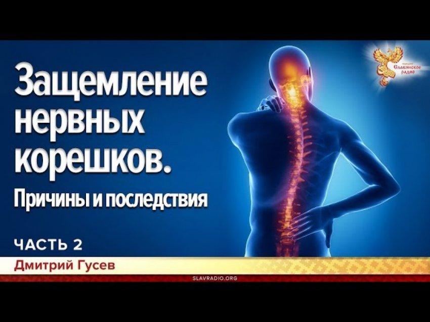 Защемление нервных корешков. Причины и последствия. Дмитрий Гусев. Часть 2