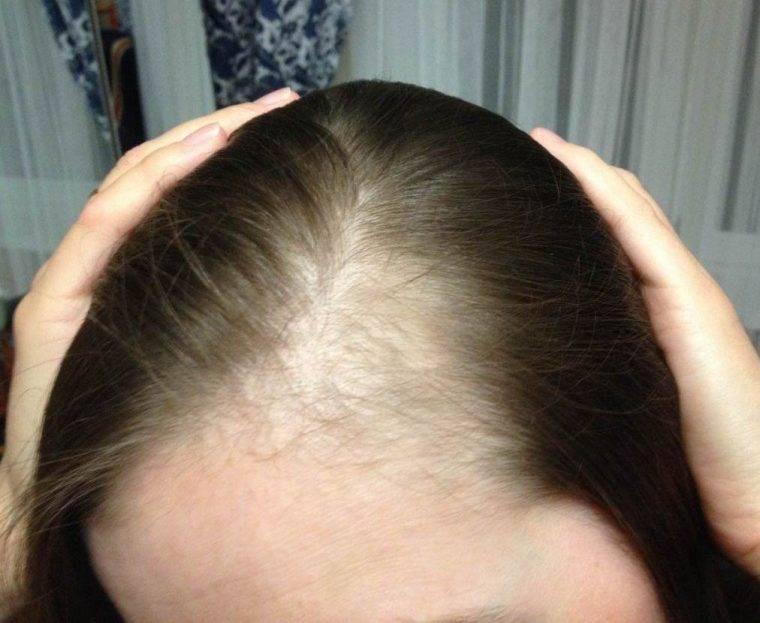 Выпадение волос на голове может быть тревожным симптомом опасного заболевания