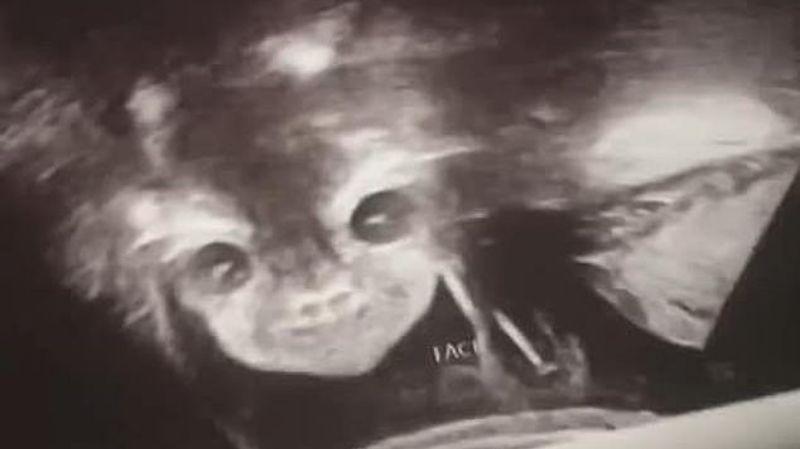 Шокирующее УЗИ: в утробе матери «дьявольский ребенок» открыл глаза и улыбнулся