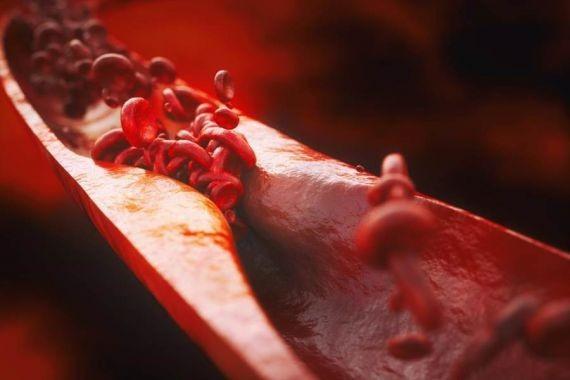 Врачи назвали признаки развития атеросклероза