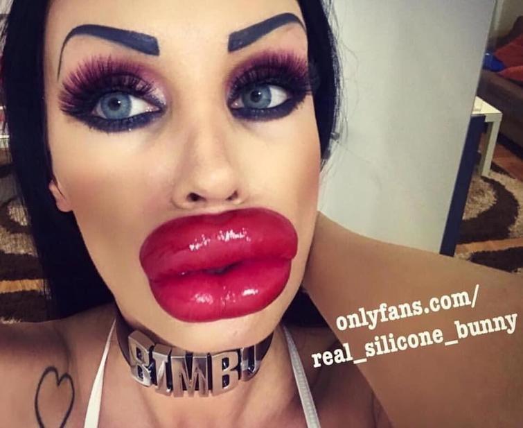 Утиные истории или к чему приводит мода на увеличение губ