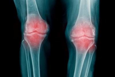 Медики назвали худшие продукты для людей, страдающих артритом