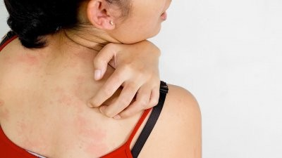Зарубежные эксперты назвали натуральные средства от кожной сыпи при аллергии