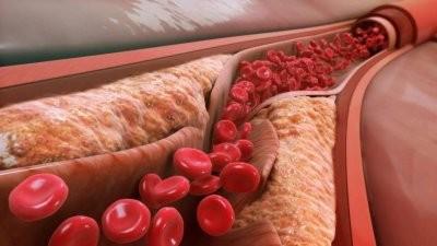 Ученые: тромбоциты способны предупреждать распространение рака
