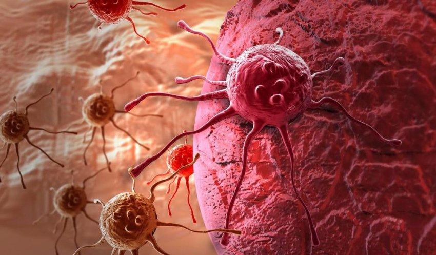 Врачи рассказали, какие продукты повышают риск развития онкологии