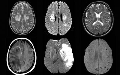 Ученые рассказали о неврологических последствиях коронавируса