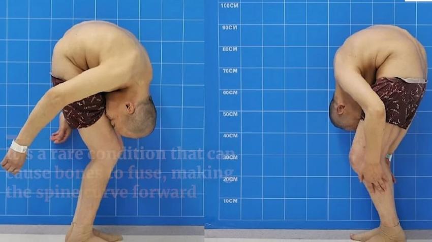 Чтобы спасти пациента хирурги сломали ему позвоночник в двух местах