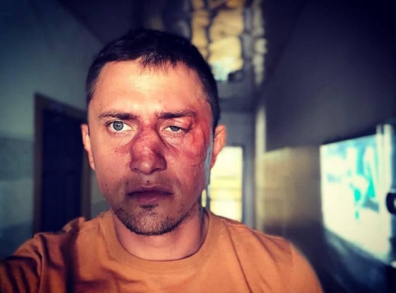 У Павла Прилучного после операции начались серьезные проблемы со здоровьем
