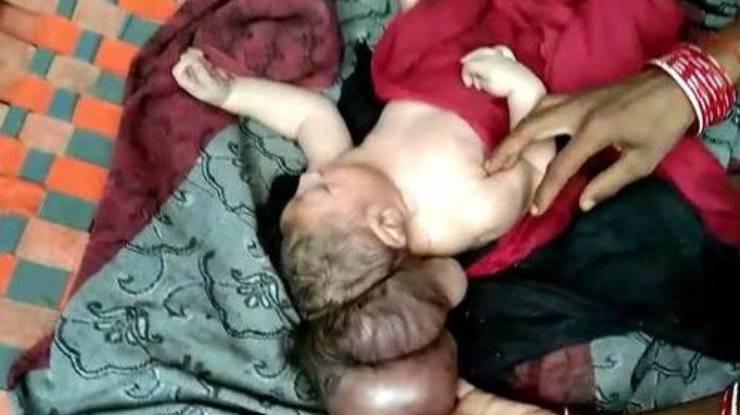 В Индии родился трехголовый ребенок